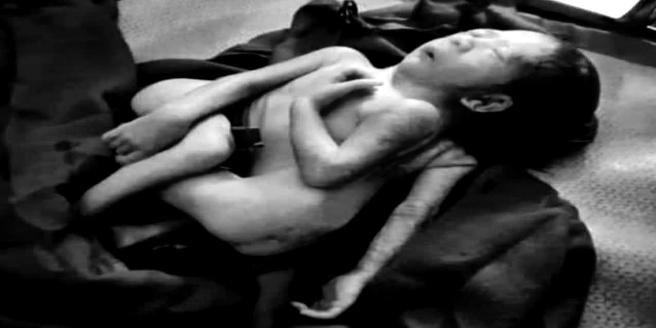 মহেশখালীর এক দম্পতির ৪ পা ও ৩ হাত বিশিষ্ট শিশুর জন্ম কয়েক ঘন্টা পর মৃত্যু